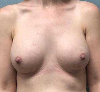 Breast Augmentation Gallery 18