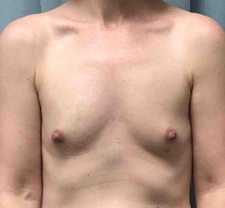 Breast Augmentation Gallery 17