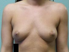 Breast Augmentation Gallery 19