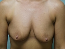 Breast Lift With Augmentation 5