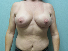Breast Lift Gallery 4