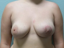 Breast Lift Gallery 6