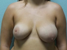 Breast Lift Gallery 5