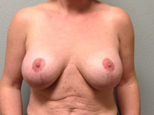 Breast Lift With Augmentation 1