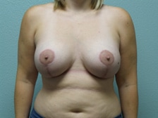 Breast Lift With Augmentation 12