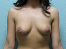 Breast Augmentation Gallery 27