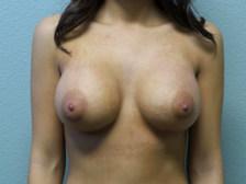 Breast Augmentation Gallery 28