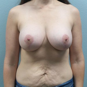 Breast Lift with Augmentation Gallery 4