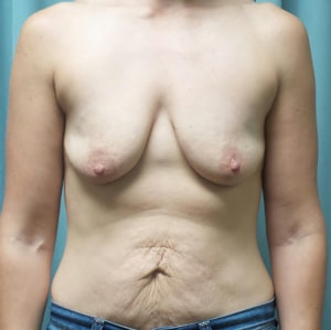 Breast Lift with Augmentation Gallery 3
