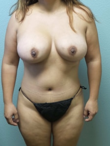 Abdominoplasty Gallery 4