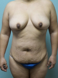 Abdominoplasty Gallery 3