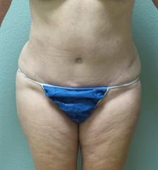 Abdominoplasty Gallery 10