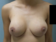 Breast Lift with Augmentation Gallery 10