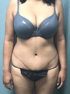Abdominoplasty Gallery 2