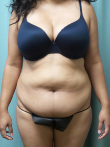 Abdominoplasty Gallery 1