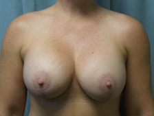Breast Lift with Augmentation Gallery 8