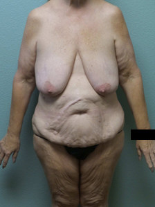Abdominoplasty Gallery 5