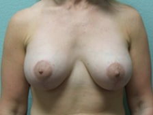 Breast Lift with Augmentation Gallery 12