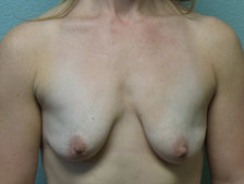 Breast Lift with Augmentation Gallery 11