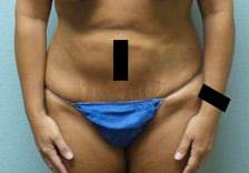 Abdominoplasty Gallery 11
