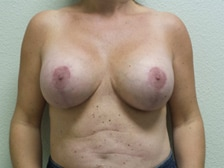Breast Lift with Augmentation Gallery 2