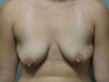 Breast Lift with Augmentation Gallery 5