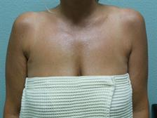 Axillary Breast Tissue Gallery 2