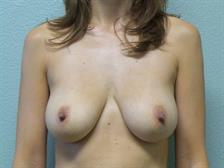 Breast Lift with Augmentation Gallery 13