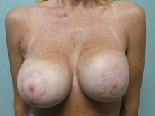 Breast Reconstruction Gallery 1