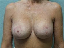Breast Reconstruction Gallery 2