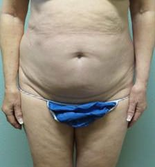 Abdominoplasty Gallery 9