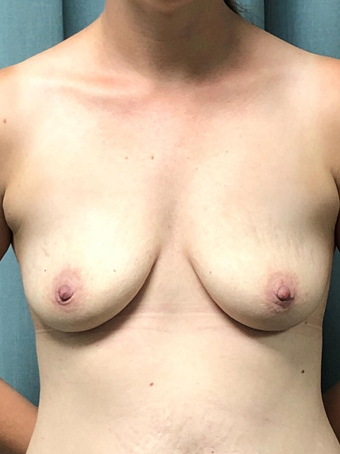 Breast Augmentation Gallery 15