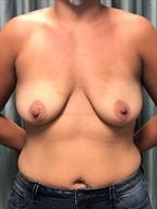 Breast Augmentation Gallery 13