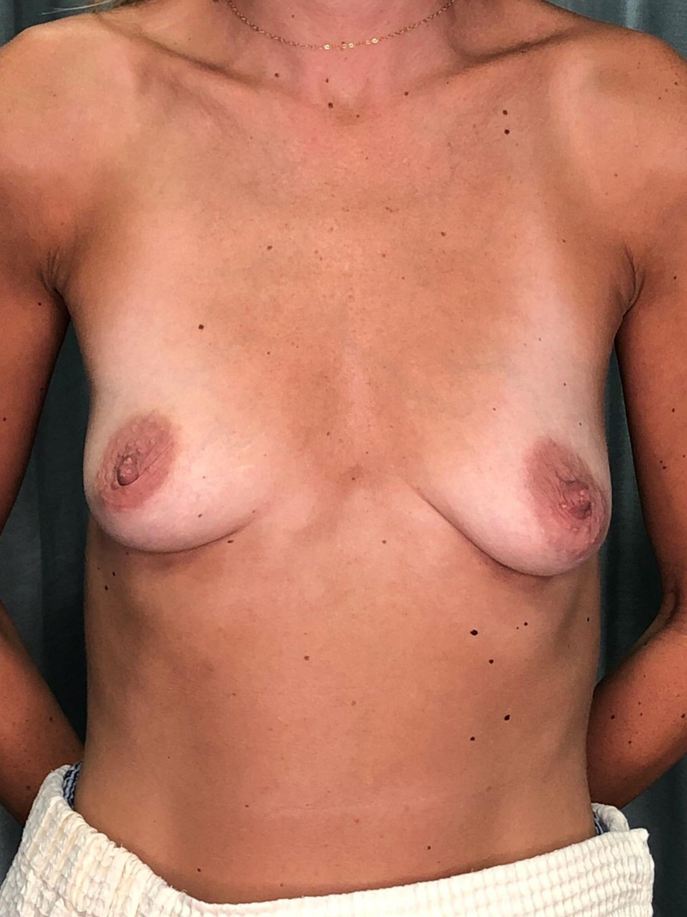 Breast Augmentation Gallery 11