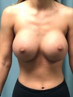 Breast Augmentation Gallery 6