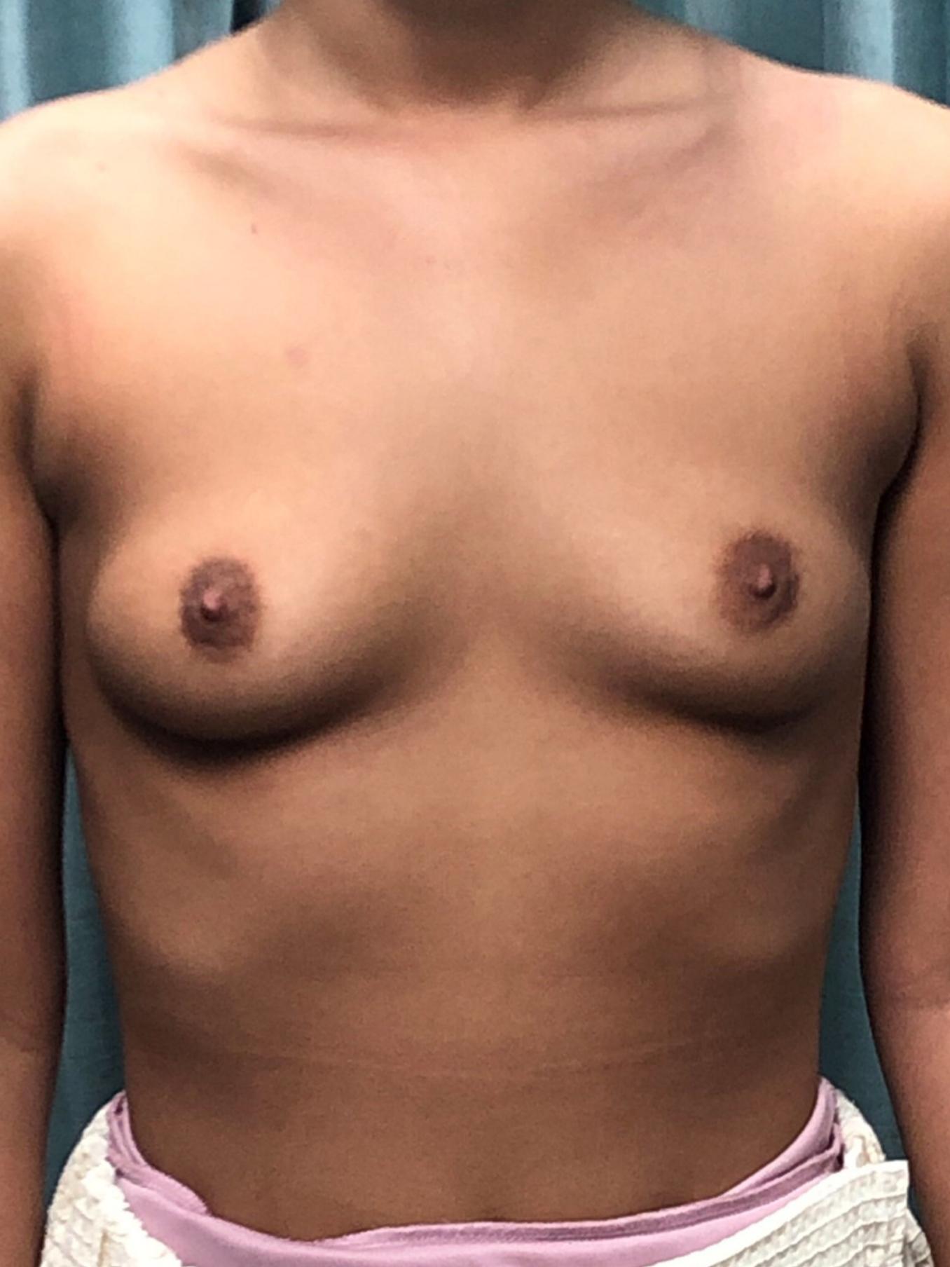 Breast Augmentation Gallery 7