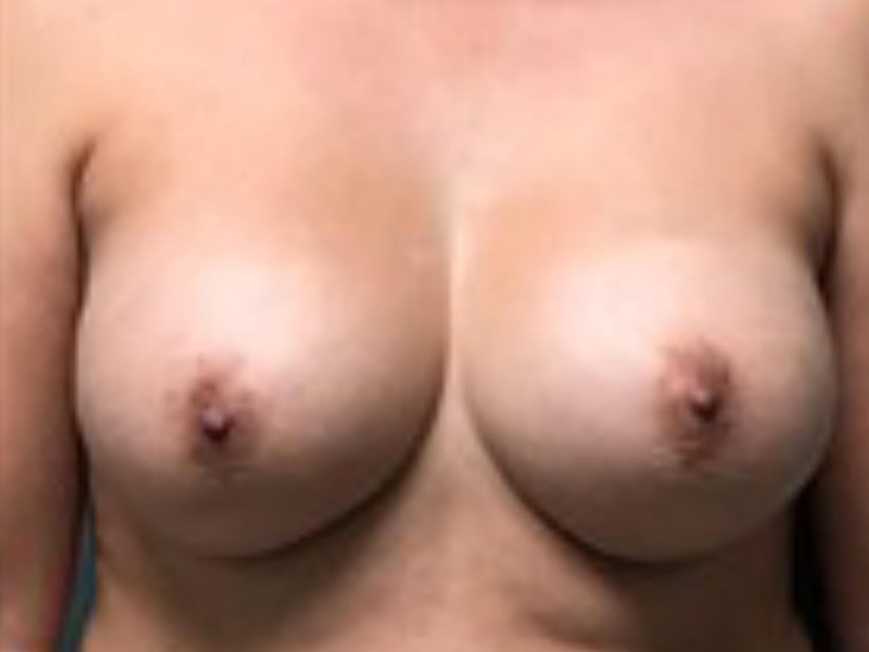 Breast Augmentation Gallery 4