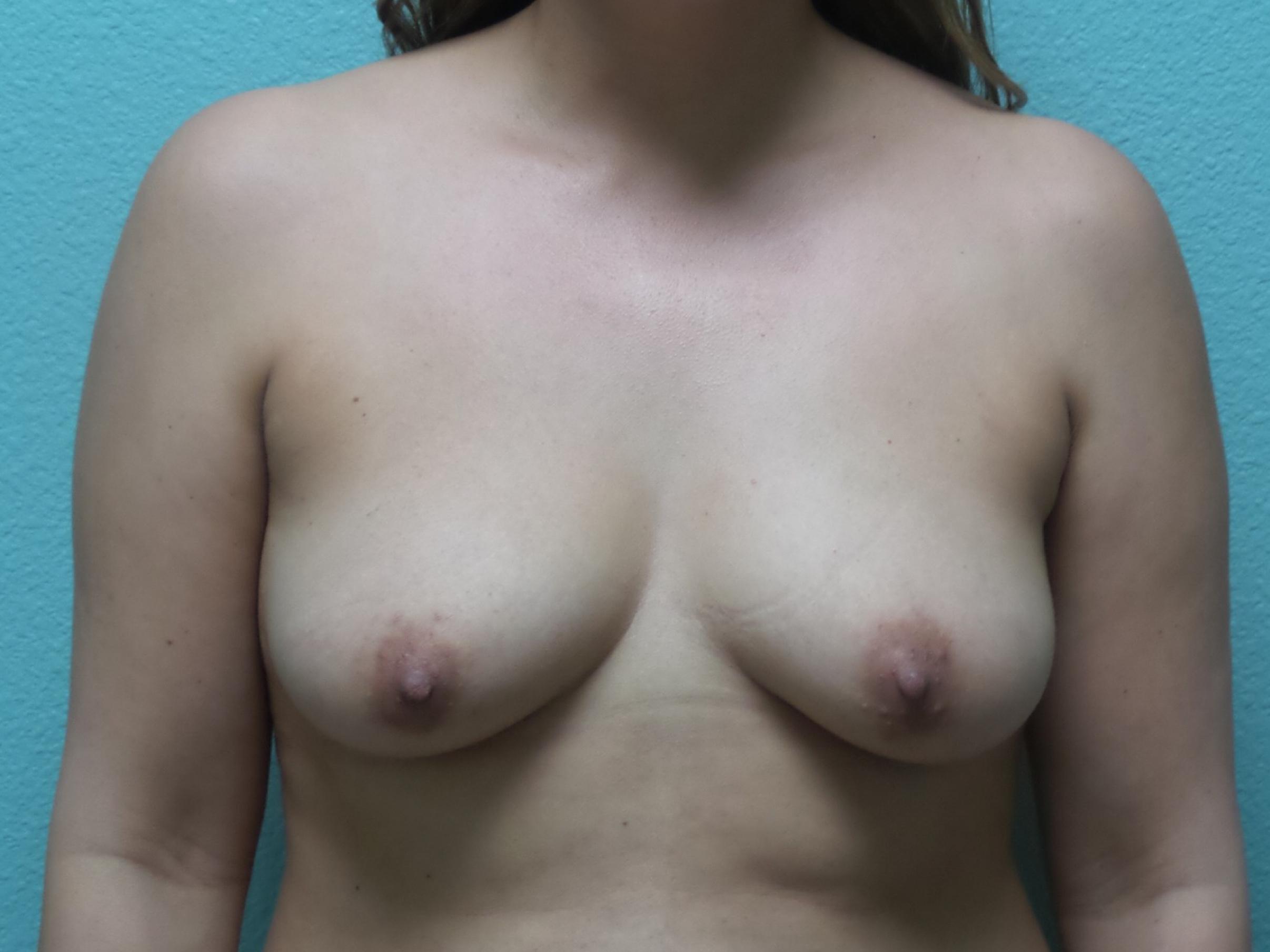 Breast Augmentation Gallery 3