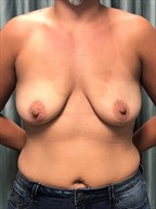 Breast Lift With Augmentation 13