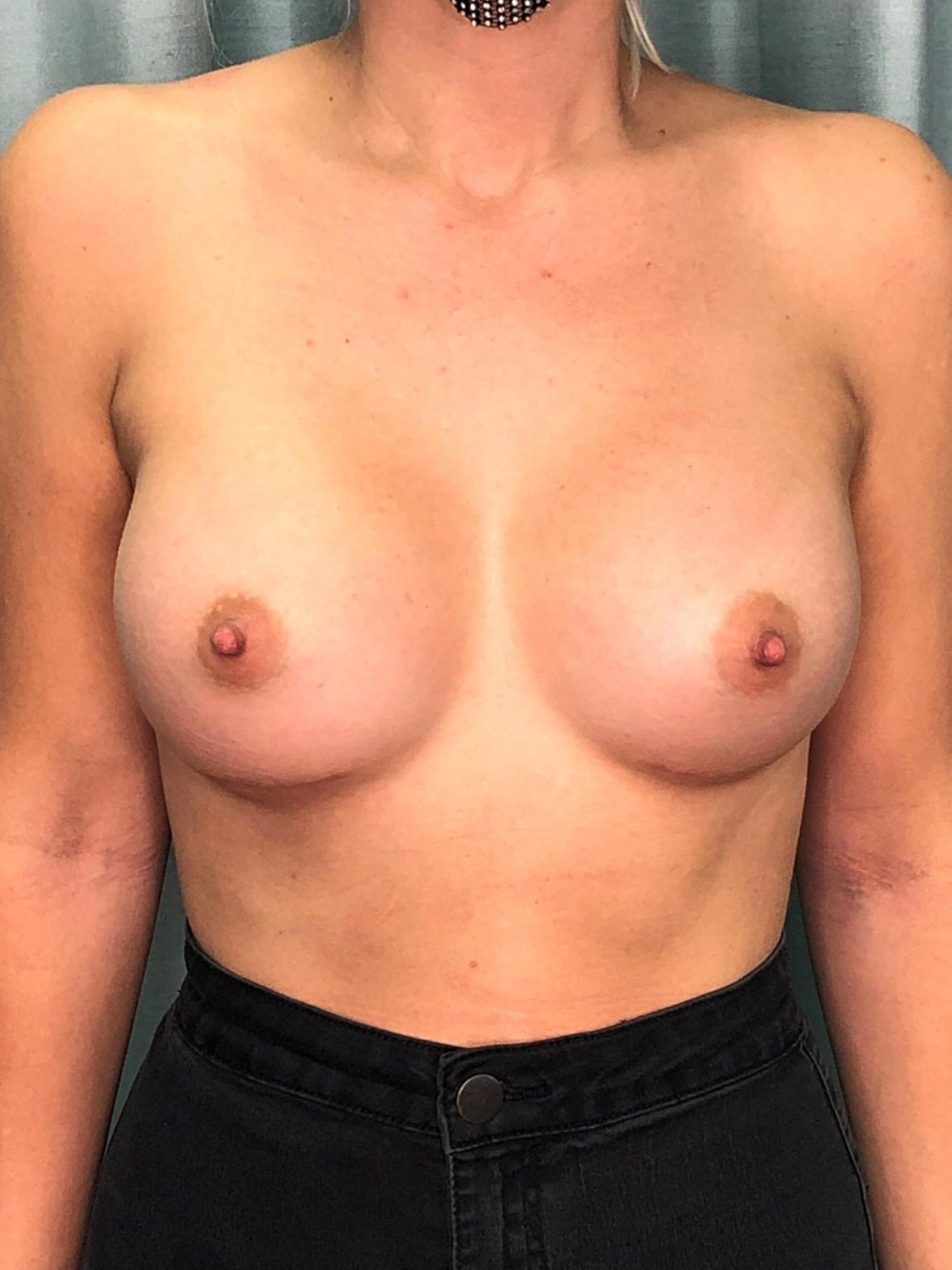 Breast Augmentation Gallery 10