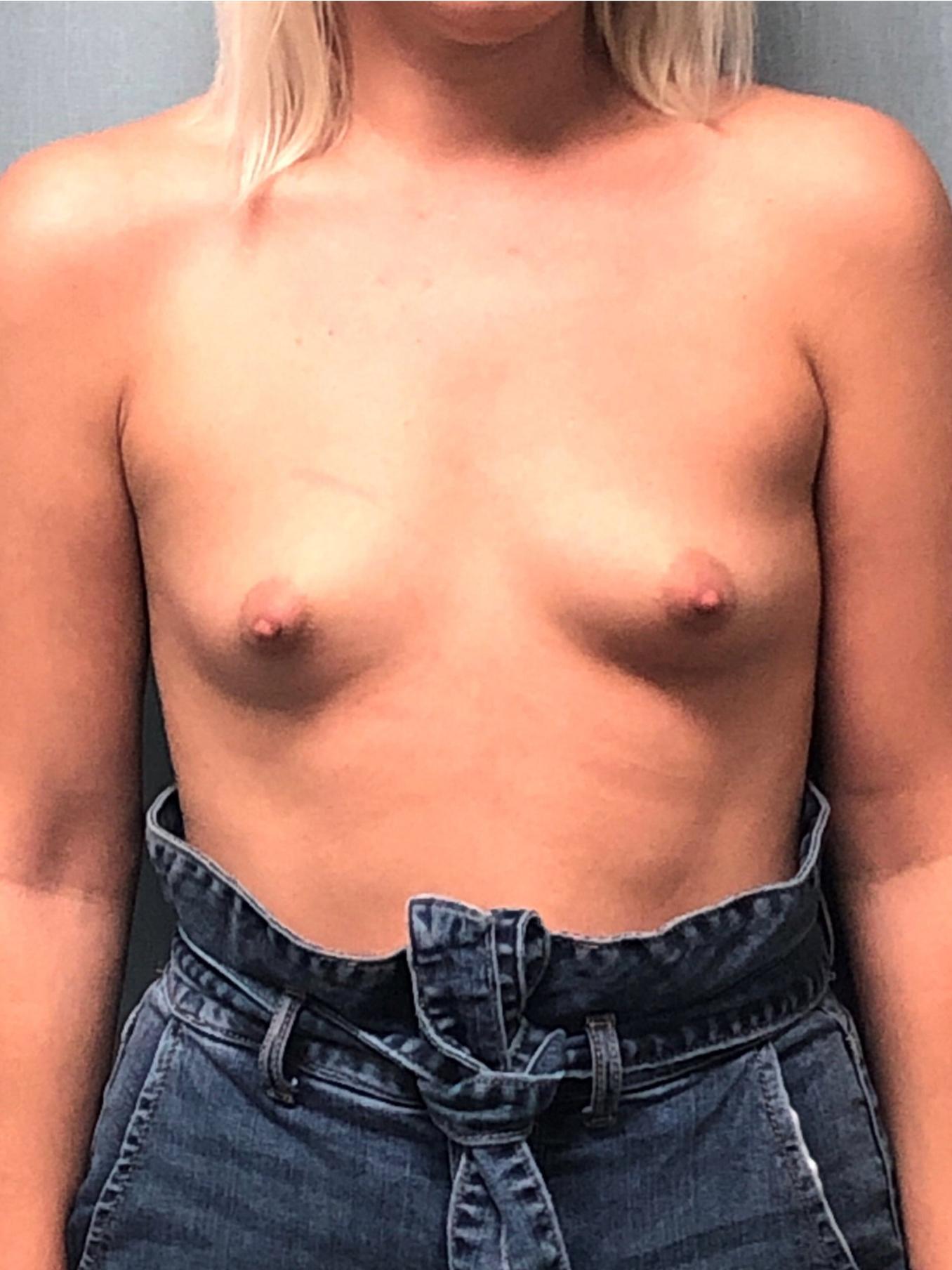 Breast Augmentation Gallery 9