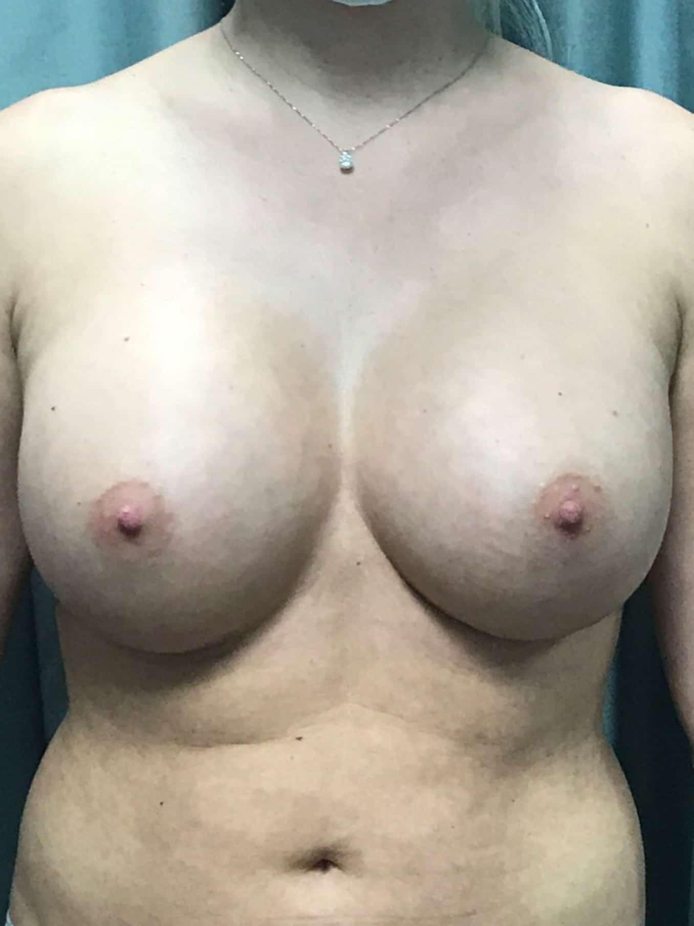 Breast Augmentation Gallery 2