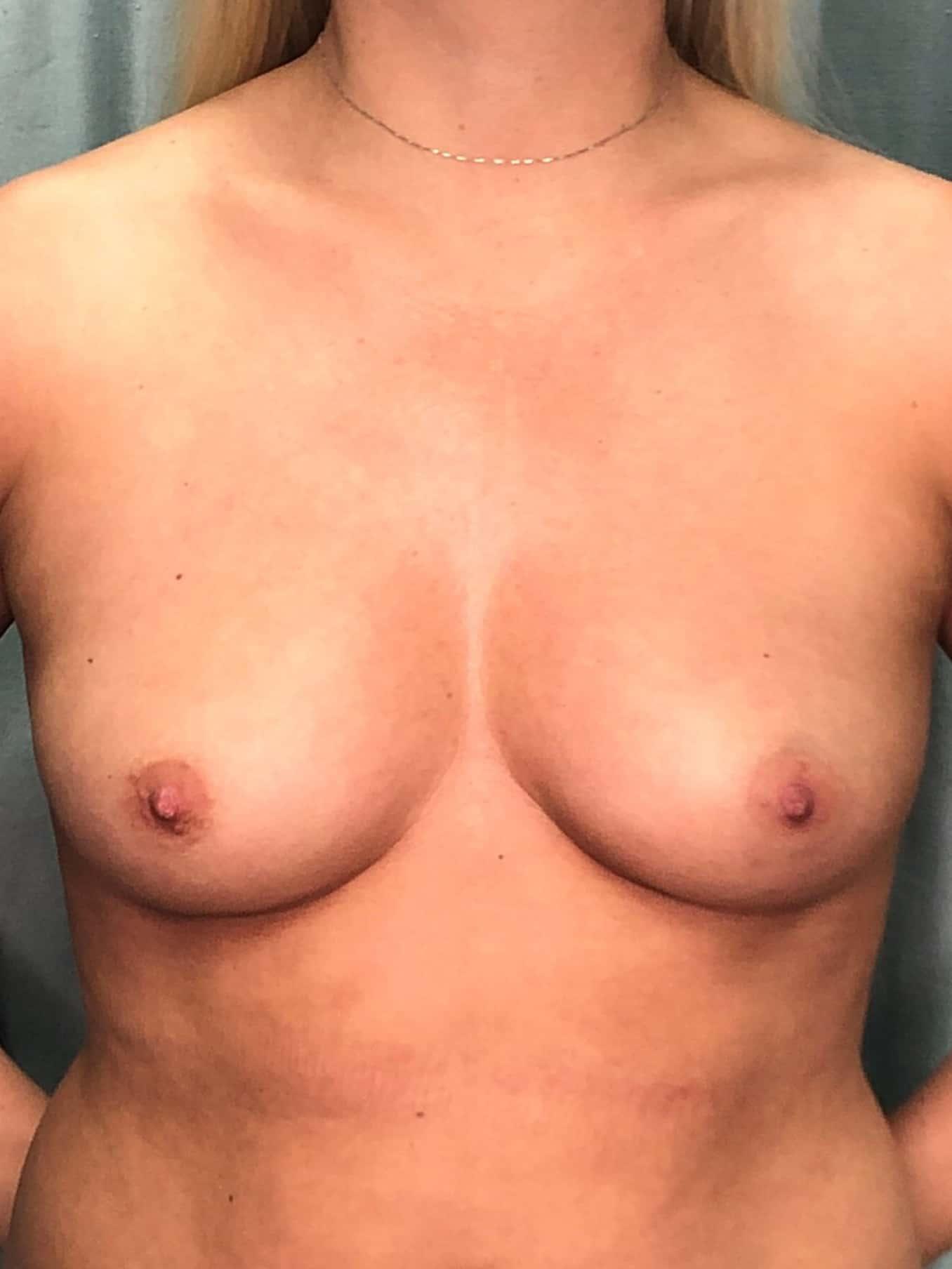Breast Augmentation Gallery 1