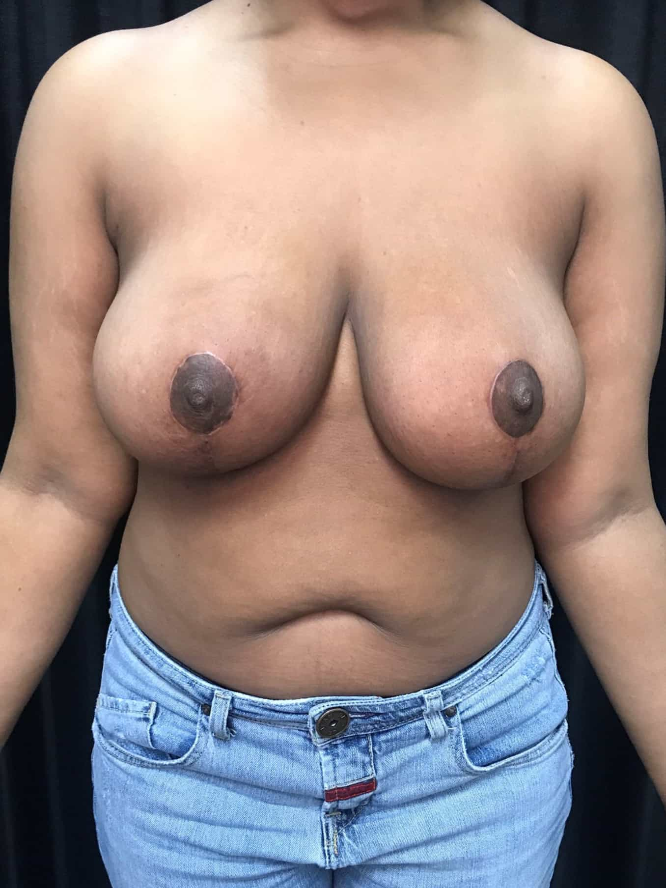 Breast Lift Gallery 2