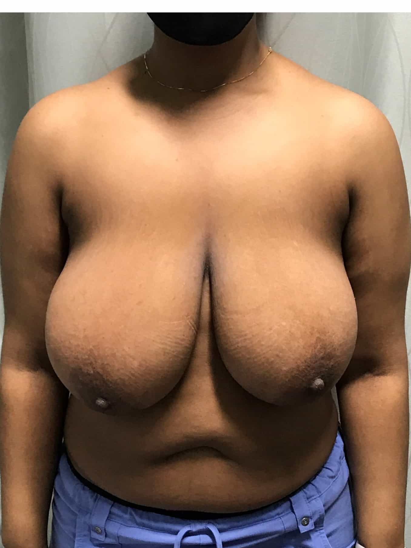 Breast Lift Gallery 1